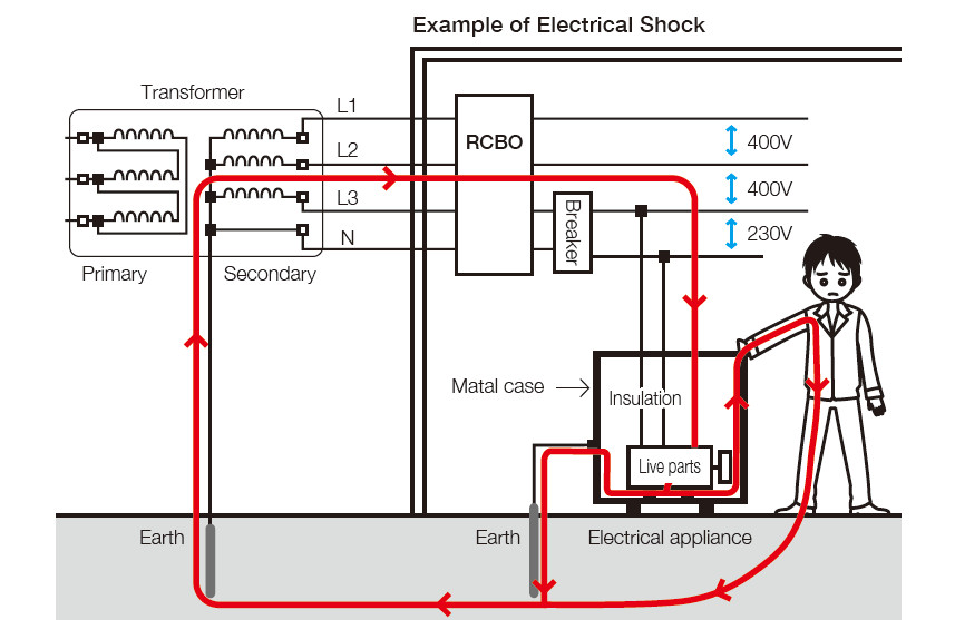 Example of Electrical Shock